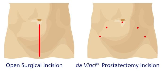Open Surgical Incision vs. Da Vinci Prostatectomy Incision
